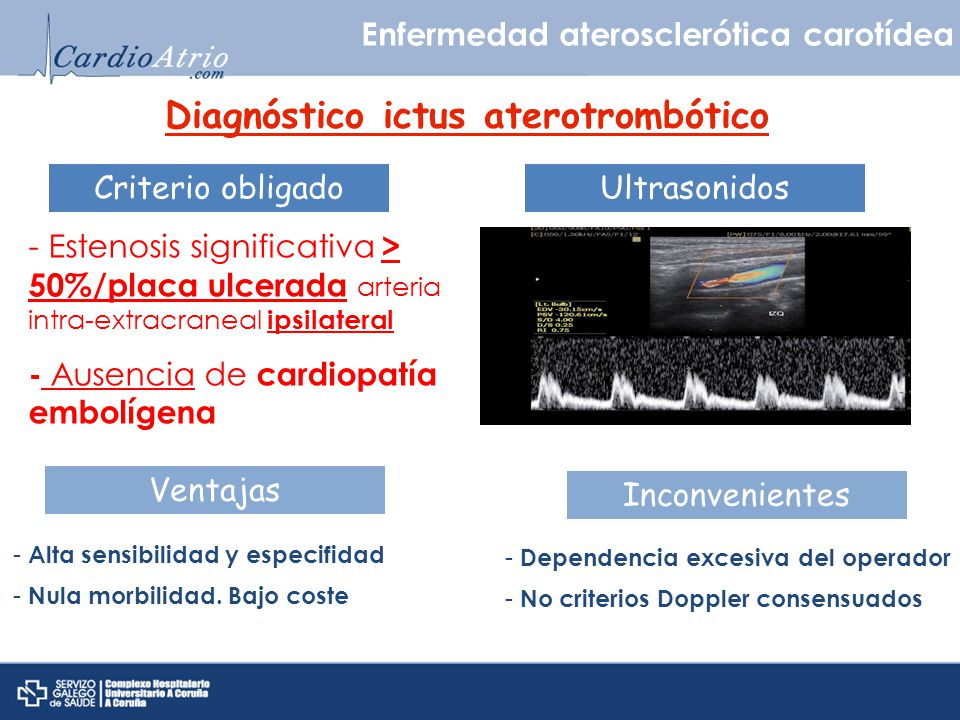 Diagnóstico ictus aterotrombótico Enfermedad aterosclerótica carotídea Criterio obligado - Estenosis significativa > 50%/placa ulcerada arteria intra-