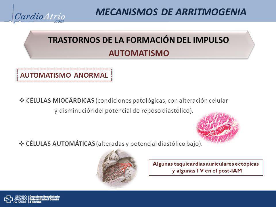 MECANISMOS DE ARRITMOGENIA TRASTORNOS DE LA FORMACIÓN DEL IMPULSO AUTOMATISMO TRASTORNOS DE LA FORMACIÓN DEL IMPULSO AUTOMATISMO AUTOMATISMO ANORMAL C