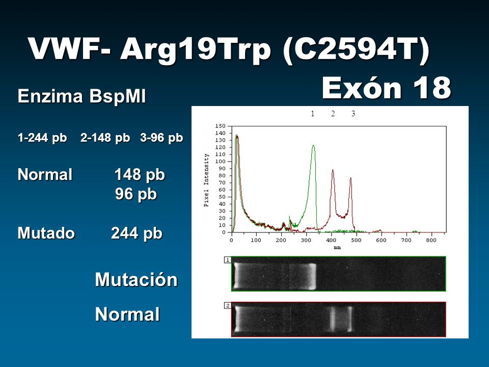VWF- Arg19Trp (C2594T) Exón 18 Enzima BspMI 1-244 pb 2-148 pb 3-96 pb Normal 148 pb 96 pb Mutado 244 pb 123 MutaciónNormal