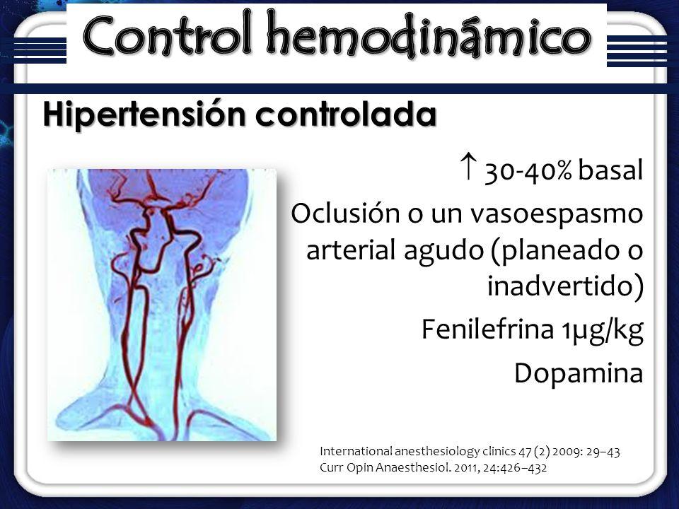 30-40% basal Oclusión o un vasoespasmo arterial agudo (planeado o inadvertido) Fenilefrina 1µg/kg Dopamina Hipertensión controlada International anest