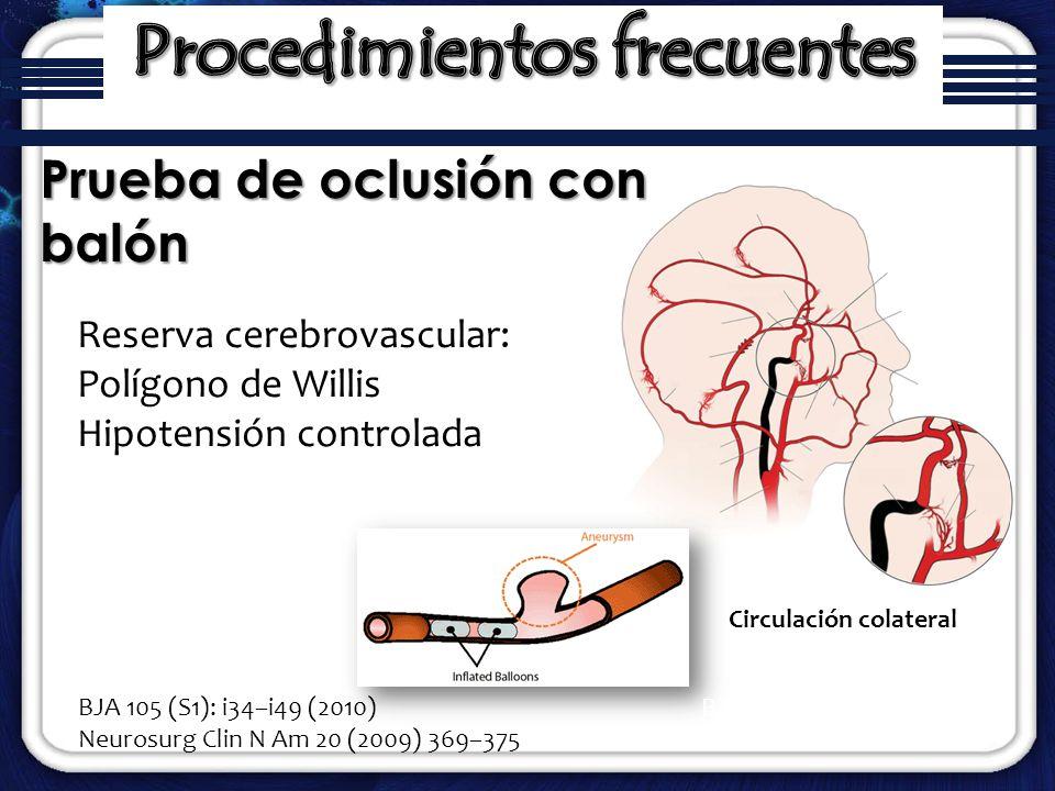 Circulación colateral Prueba de oclusión con balón BJA: 105 (S1): i34–i49 (2010) Reserva cerebrovascular: Polígono de Willis Hipotensión controlada BJ