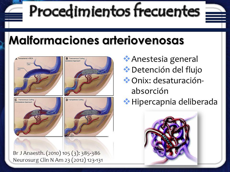 Anestesia general Detención del flujo Onix: desaturación- absorción Hipercapnia deliberada Malformaciones arteriovenosas Br J Anaesth. (2010) 105 (3):