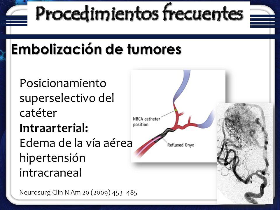 Embolización de tumores Posicionamiento superselectivo del catéter Intraarterial: Edema de la vía aérea hipertensión intracraneal Neurosurg Clin N Am