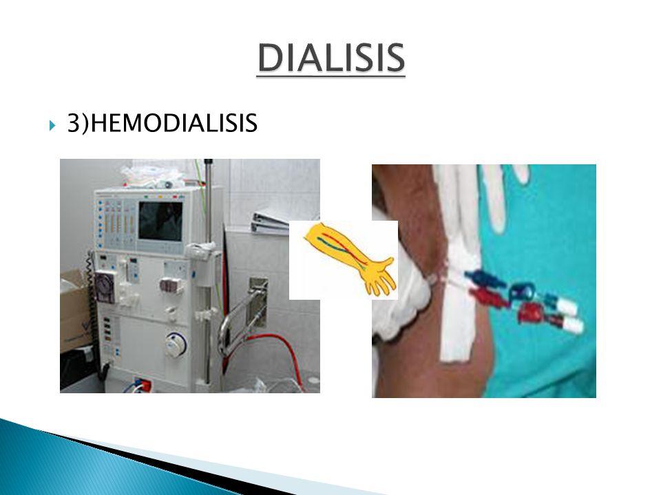 3)HEMODIALISIS