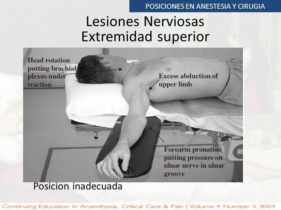 Lesiones Nerviosas Extremidad superior POSICIONES EN ANESTESIA Y CIRUGIA Posicion inadecuada