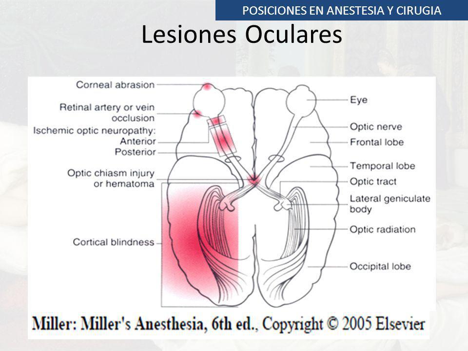 Lesiones Oculares POSICIONES EN ANESTESIA Y CIRUGIA