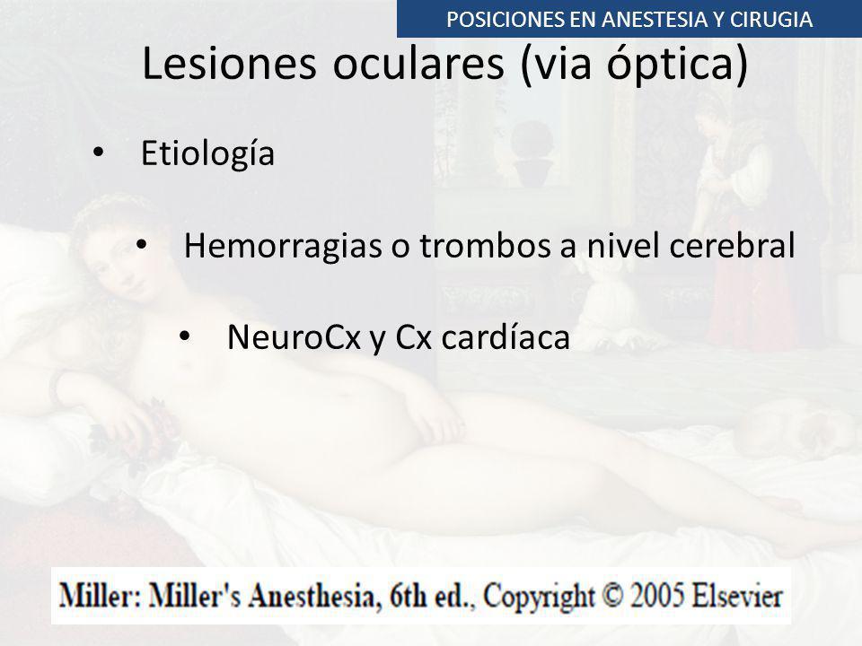 Lesiones oculares (via óptica) Etiología Hemorragias o trombos a nivel cerebral NeuroCx y Cx cardíaca POSICIONES EN ANESTESIA Y CIRUGIA