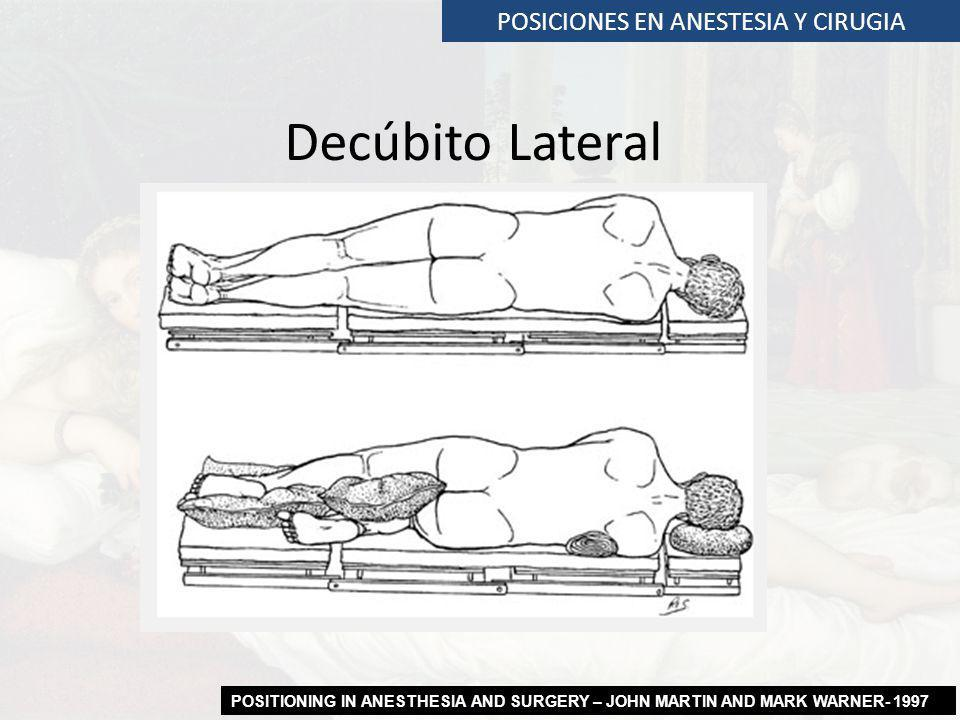 POSICIONES EN ANESTESIA Y CIRUGIA Decúbito Lateral POSITIONING IN ANESTHESIA AND SURGERY – JOHN MARTIN AND MARK WARNER- 1997