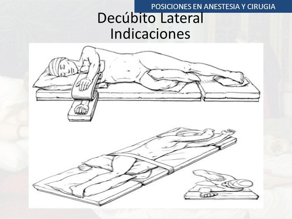 POSICIONES EN ANESTESIA Y CIRUGIA Decúbito Lateral Indicaciones