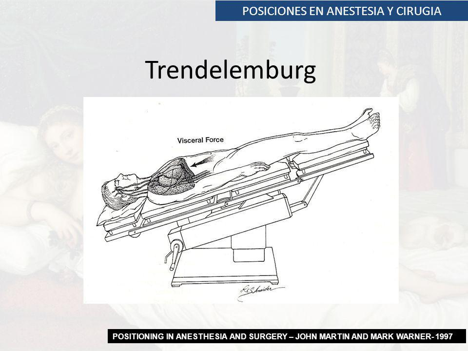 POSICIONES EN ANESTESIA Y CIRUGIA Trendelemburg POSITIONING IN ANESTHESIA AND SURGERY – JOHN MARTIN AND MARK WARNER- 1997
