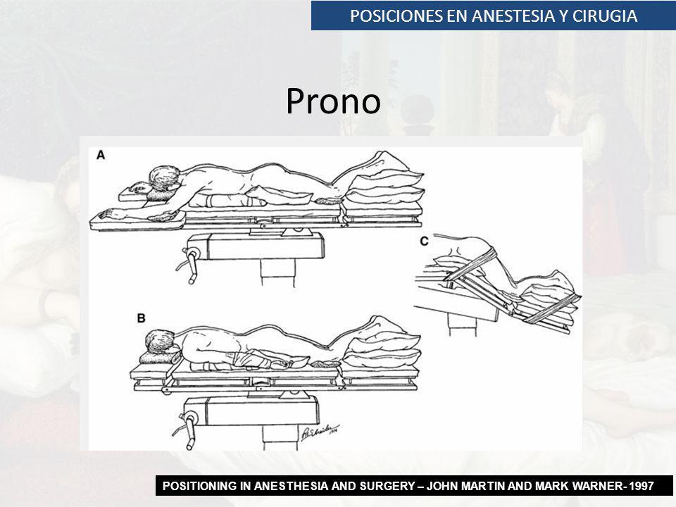POSICIONES EN ANESTESIA Y CIRUGIA Prono POSITIONING IN ANESTHESIA AND SURGERY – JOHN MARTIN AND MARK WARNER- 1997