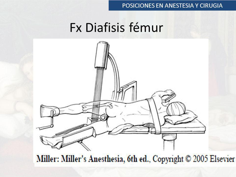 POSICIONES EN ANESTESIA Y CIRUGIA Fx Diafisis fémur