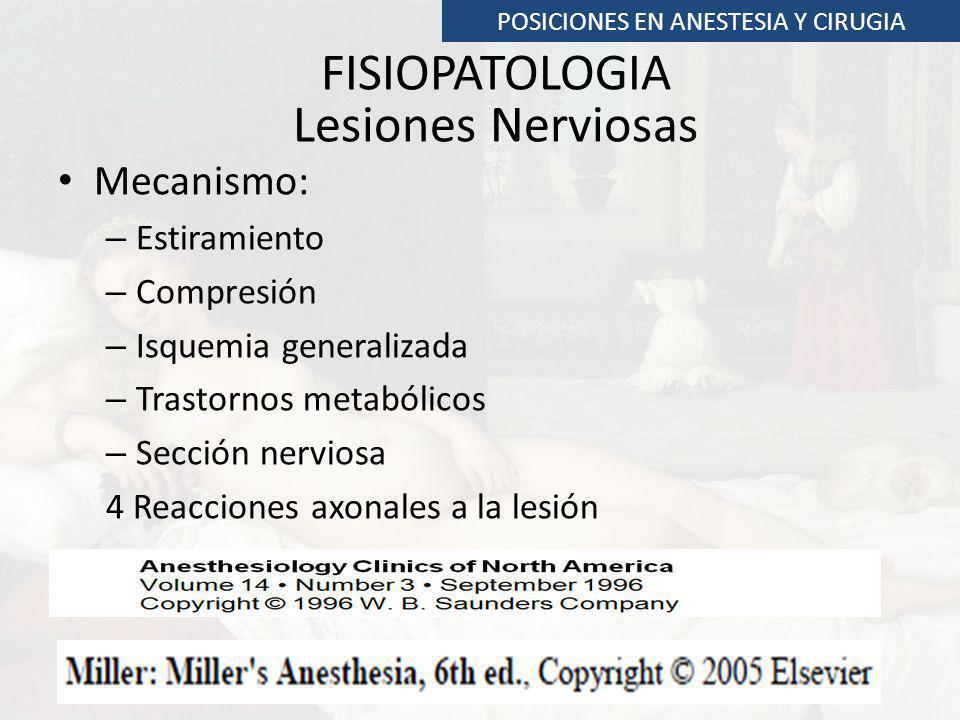 Lesiones Nerviosas Extremidad inferior POSICIONES EN ANESTESIA Y CIRUGIA