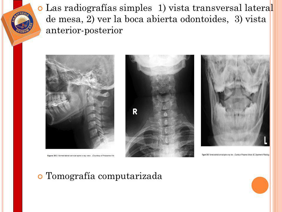 Las radiografías simples 1) vista transversal lateral de mesa, 2) ver la boca abierta odontoides, 3) vista anterior-posterior Tomografía computarizada