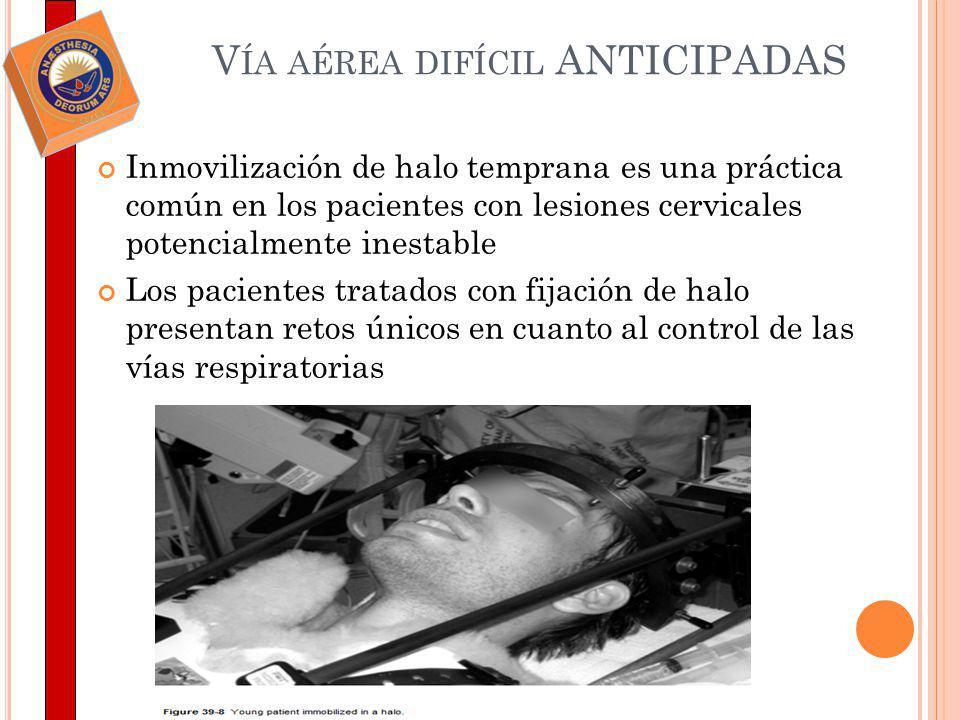 V ÍA AÉREA DIFÍCIL ANTICIPADAS Inmovilización de halo temprana es una práctica común en los pacientes con lesiones cervicales potencialmente inestable