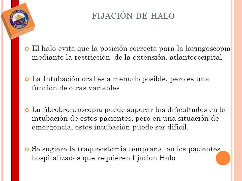 FIJACIÓN DE HALO El halo evita que la posición correcta para la laringoscopia mediante la restricción de la extensión. atlantooccipital La Intubación