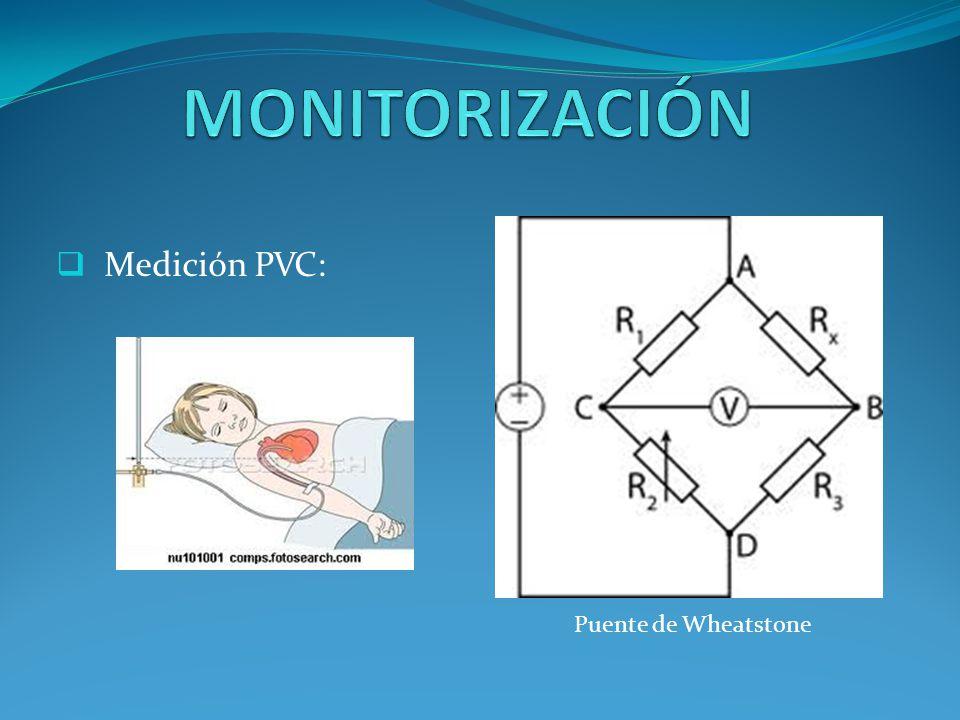 Medición PA: