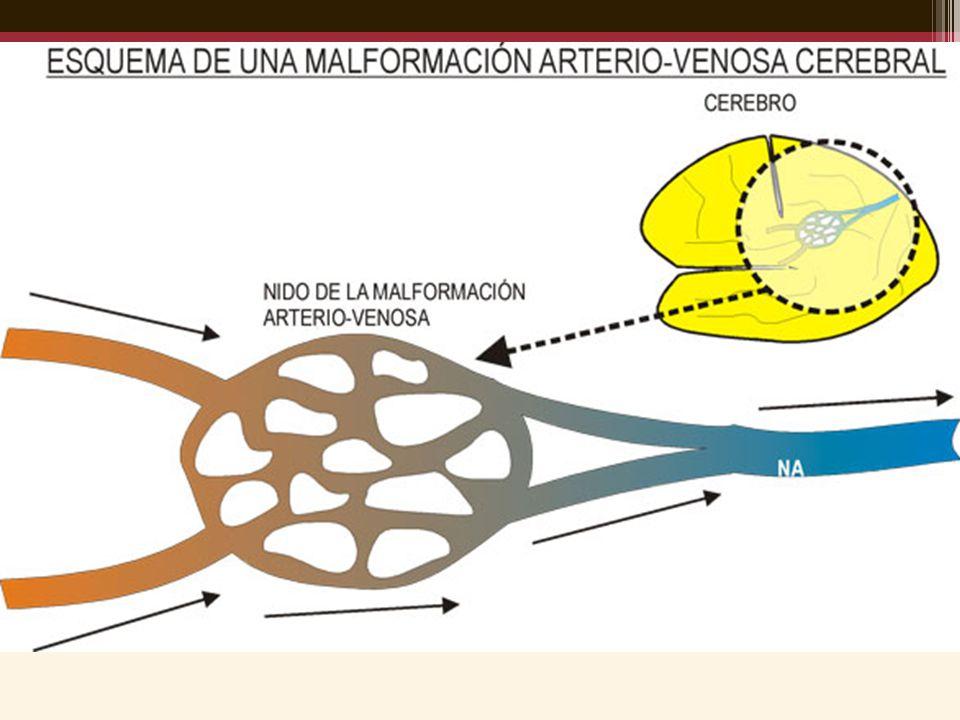 EMBOLIZACIÓN ENDOVASCULAR Principios Requiere angiografía superselectiva.