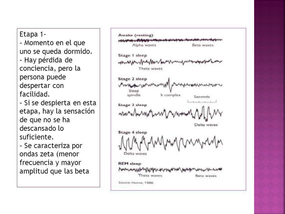 Etapa 2 - Aparecen lo que se conoce como ondas puntiagudas.