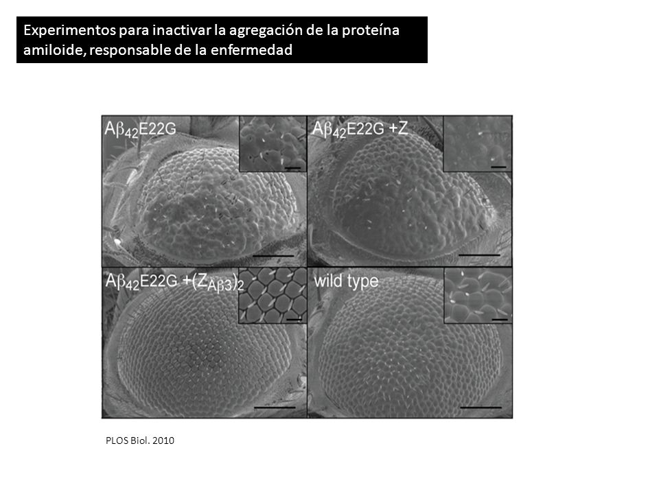 Tratamiento de pacientes de Cáncer con el fármaco GDC-0449 (New England JM Sept 2009) 33 pacientes cáncer epidérmico avanzado 18 – mejora significativa 11 – expansión del cáncer bloqueada 4 – no se observa mejoria Paciente con meduloblastoma agresivo (estadio terminal) Comienzo del tratamientoDos meses despuésUn mes mas tarde Ya se conoce la causa de la reactivacion de la enfermedad ( Science, 2009): una mutacion somática que hace a las células tumorales insensibles a GDC-0449 sin afectar la actividad hedhehog Desarrollado por GeneTech, GDC-0449 se une a la proteína Smo y bloquea su función, por lo que se inactiva la via hedgehog