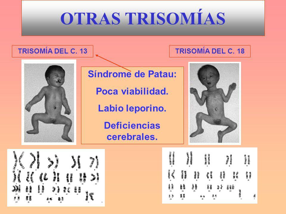 OTRAS TRISOMÍAS TRISOMÍA DEL C.13TRISOMÍA DEL C. 18 Síndrome de Patau: Poca viabilidad.