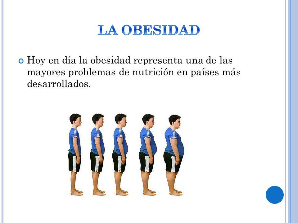 Hoy en día la obesidad representa una de las mayores problemas de nutrición en países más desarrollados.