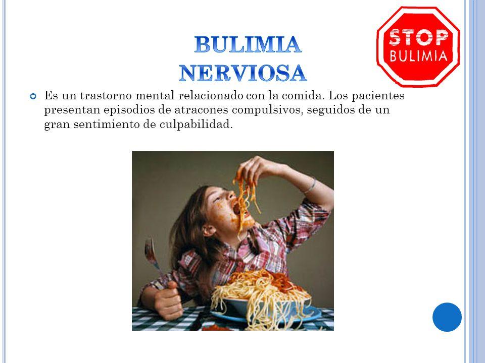 Es un trastorno mental relacionado con la comida. Los pacientes presentan episodios de atracones compulsivos, seguidos de un gran sentimiento de culpa