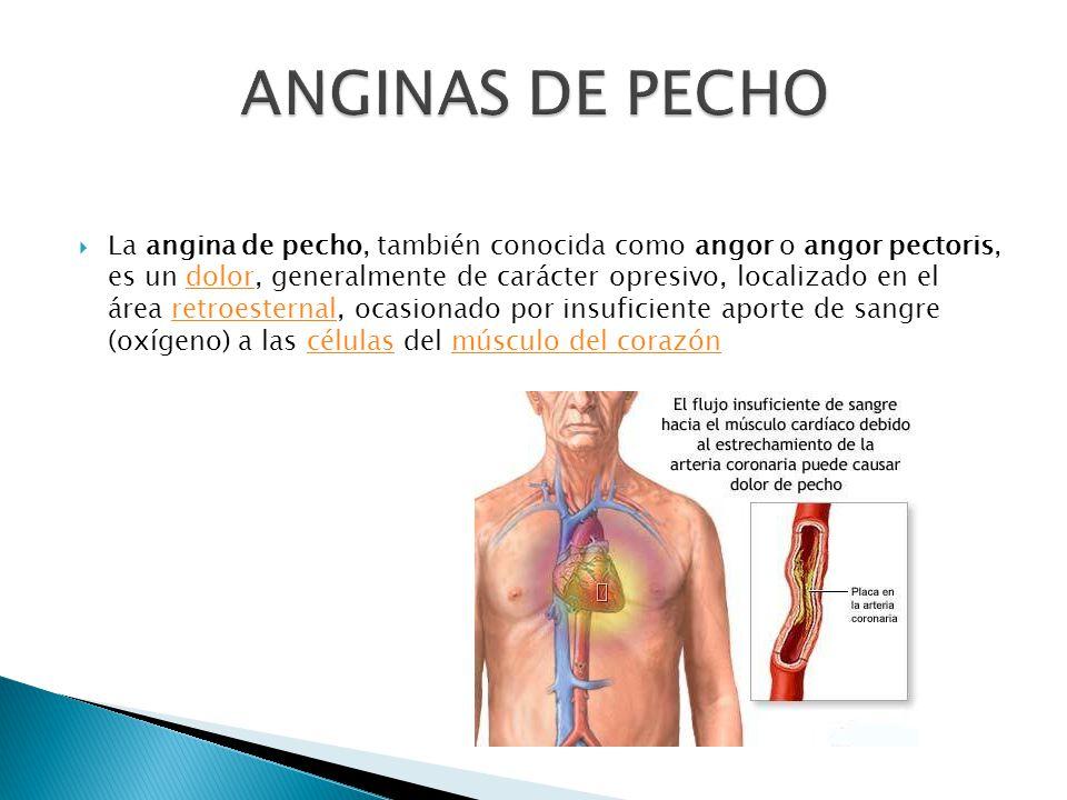 La angina de pecho, también conocida como angor o angor pectoris, es un dolor, generalmente de carácter opresivo, localizado en el área retroesternal, ocasionado por insuficiente aporte de sangre (oxígeno) a las células del músculo del corazóndolorretroesternalcélulasmúsculo del corazón