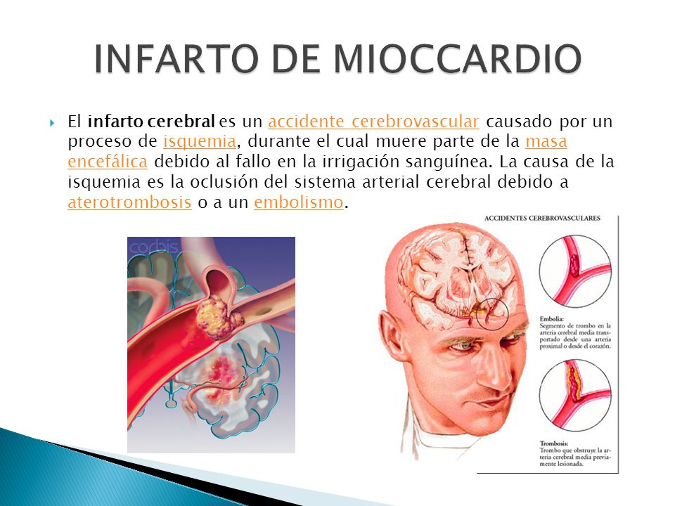 El infarto cerebral es un accidente cerebrovascular causado por un proceso de isquemia, durante el cual muere parte de la masa encefálica debido al fallo en la irrigación sanguínea.