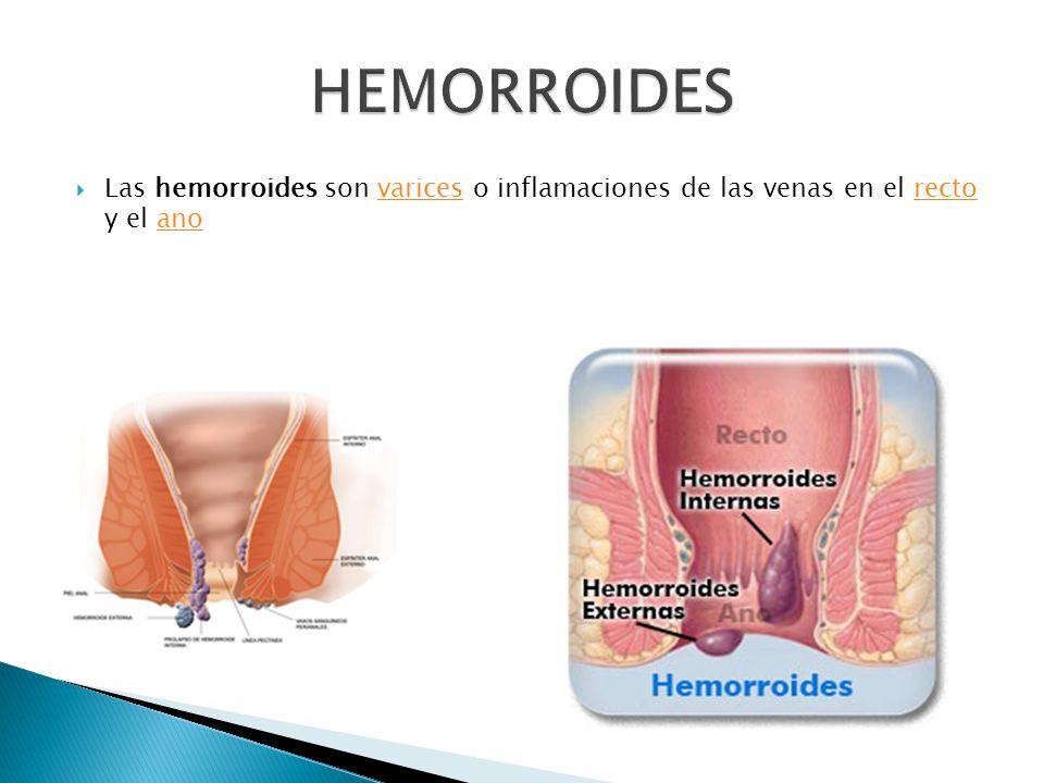 Las hemorroides son varices o inflamaciones de las venas en el recto y el anovaricesrectoano