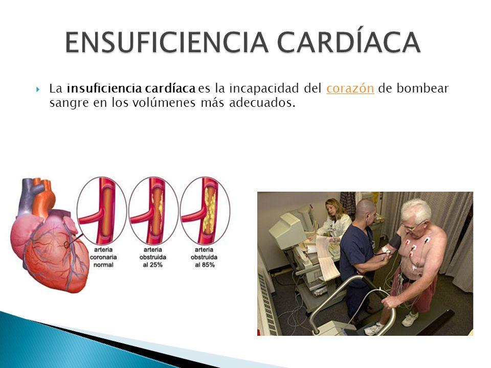 La insuficiencia cardíaca es la incapacidad del corazón de bombear sangre en los volúmenes más adecuados.corazón