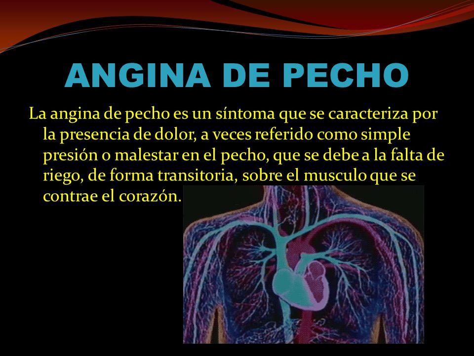 ANGINA DE PECHO La angina de pecho es un síntoma que se caracteriza por la presencia de dolor, a veces referido como simple presión o malestar en el pecho, que se debe a la falta de riego, de forma transitoria, sobre el musculo que se contrae el corazón.