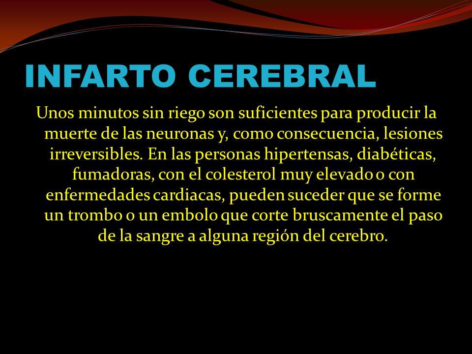 INFARTO CEREBRAL Unos minutos sin riego son suficientes para producir la muerte de las neuronas y, como consecuencia, lesiones irreversibles.