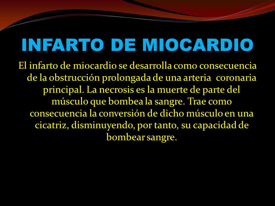 INFARTO DE MIOCARDIO El infarto de miocardio se desarrolla como consecuencia de la obstrucción prolongada de una arteria coronaria principal. La necro