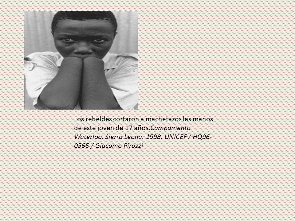 Los rebeldes cortaron a machetazos las manos de este joven de 17 años.Campamento Waterloo, Sierra Leona, 1998.