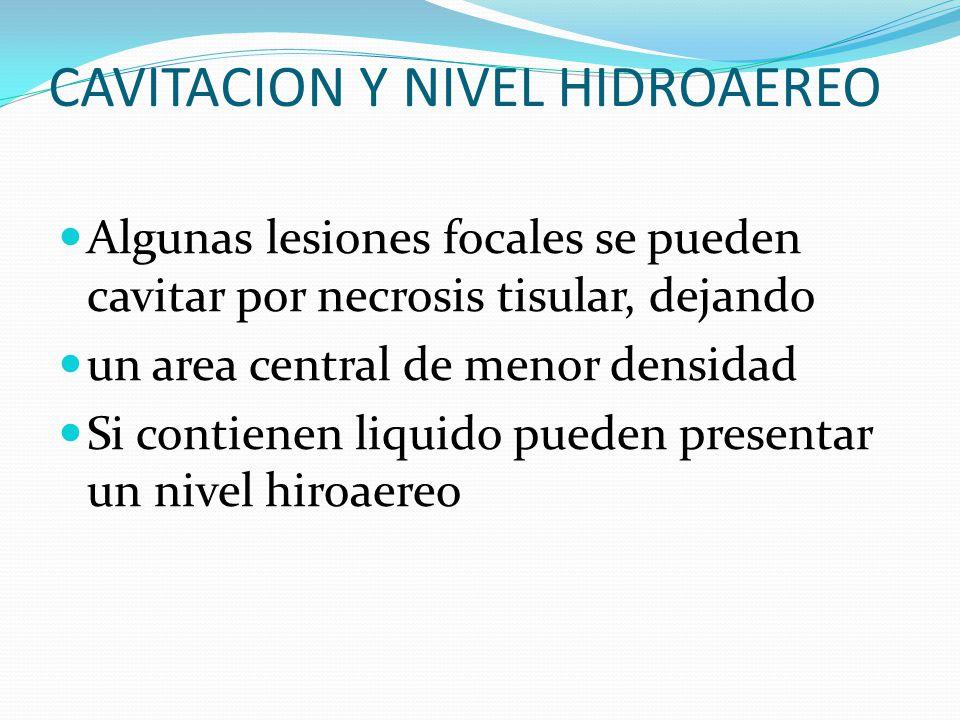 CAVITACION Y NIVEL HIDROAEREO Algunas lesiones focales se pueden cavitar por necrosis tisular, dejando un area central de menor densidad Si contienen liquido pueden presentar un nivel hiroaereo