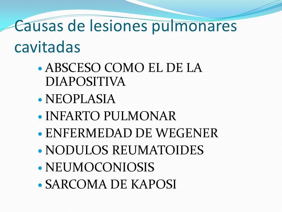 Causas de lesiones pulmonares cavitadas ABSCESO COMO EL DE LA DIAPOSITIVA NEOPLASIA INFARTO PULMONAR ENFERMEDAD DE WEGENER NODULOS REUMATOIDES NEUMOCONIOSIS SARCOMA DE KAPOSI