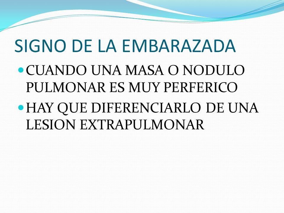SIGNO DE LA EMBARAZADA CUANDO UNA MASA O NODULO PULMONAR ES MUY PERFERICO HAY QUE DIFERENCIARLO DE UNA LESION EXTRAPULMONAR