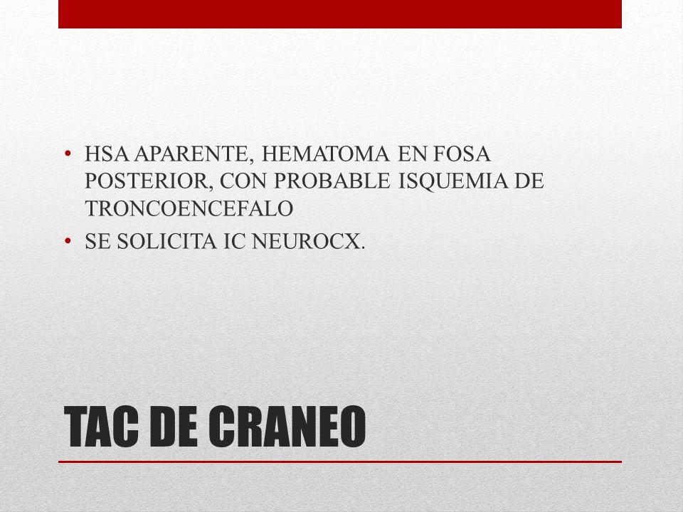 TAC DE CRANEO HSA APARENTE, HEMATOMA EN FOSA POSTERIOR, CON PROBABLE ISQUEMIA DE TRONCOENCEFALO SE SOLICITA IC NEUROCX.