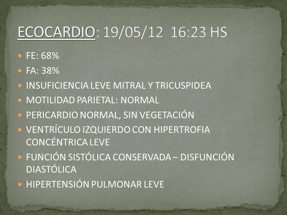 FE: 68% FA: 38% INSUFICIENCIA LEVE MITRAL Y TRICUSPIDEA MOTILIDAD PARIETAL: NORMAL PERICARDIO NORMAL, SIN VEGETACIÓN VENTRÍCULO IZQUIERDO CON HIPERTRO