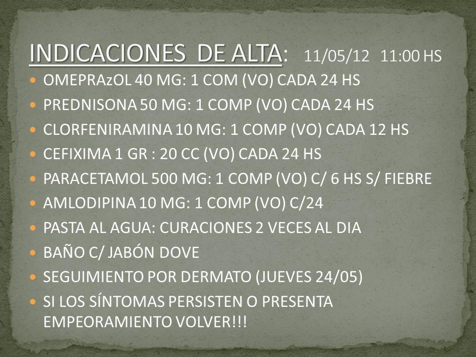 OMEPRAzOL 40 MG: 1 COM (VO) CADA 24 HS PREDNISONA 50 MG: 1 COMP (VO) CADA 24 HS CLORFENIRAMINA 10 MG: 1 COMP (VO) CADA 12 HS CEFIXIMA 1 GR : 20 CC (VO