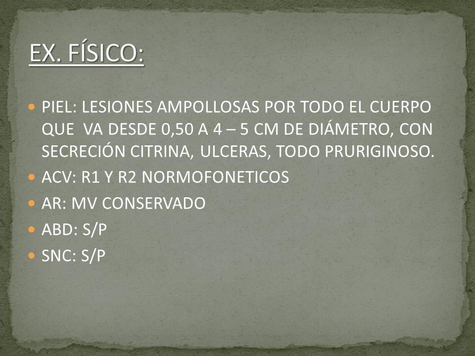 EX FISICO: AVC: R-R, R1 Y R2 NORMOFONETICOS, NO SOPLO NI GALOPE AR: TORAX SIMETRICO, NO RONCUS NI SIBILANCIAS ABD: BLANDO, DEPRESIBLE, NO DOLOROSO, RHA + SNC: LUCIDA, G 15/15, SIN DEFICIT MOTOR NI SENSITIVO APARENTE, NO SIGNOS MENINGEOS NI DE HTE MIEMBROS: SIMETRICOS SIN EDEMAS PIEL: LESIONES AMPOLLOSAS DE VARIOS TAMAÑOS EN MIEMBROS, TORAX, ABDOMEN Y ESPALDA, ALGUNAS CON LESIONES COSTROSAS, OTRAS ULCERADAS PLAN: ALTA C/ ATB Y SEGUIMIENTO POR DERMATO