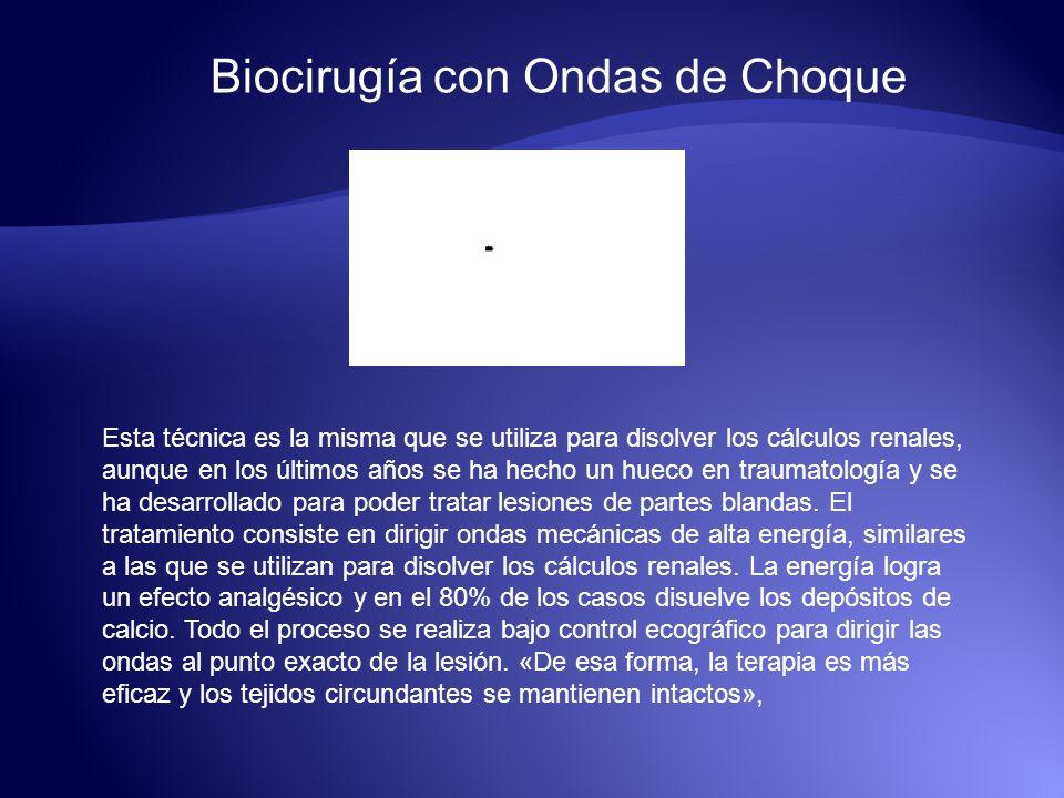 Biocirugía con Ondas de Choque Esta técnica es la misma que se utiliza para disolver los cálculos renales, aunque en los últimos años se ha hecho un h