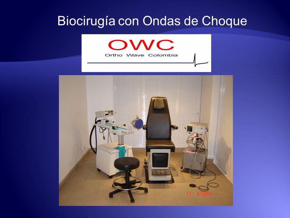 Biocirugía con Ondas de Choque