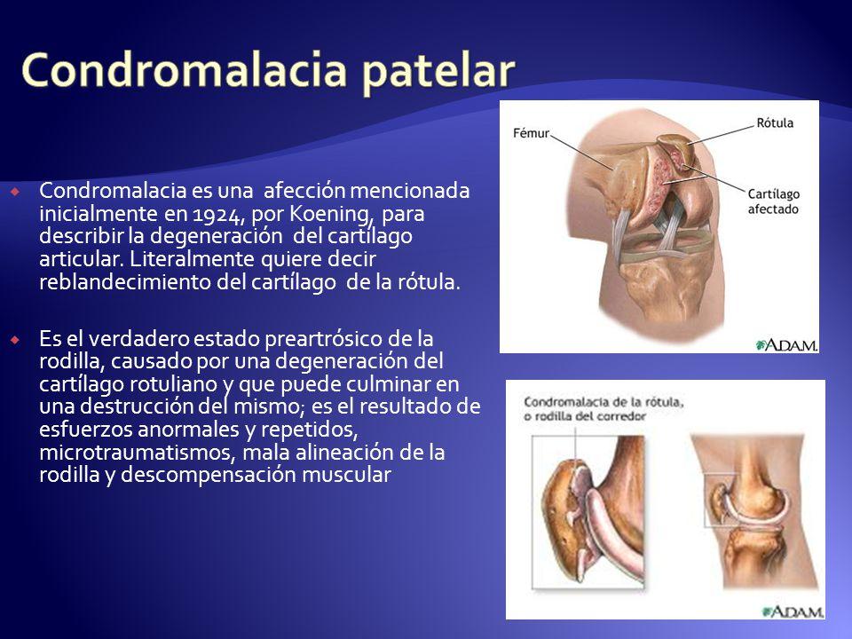 Condromalacia es una afección mencionada inicialmente en 1924, por Koening, para describir la degeneración del cartílago articular. Literalmente quier