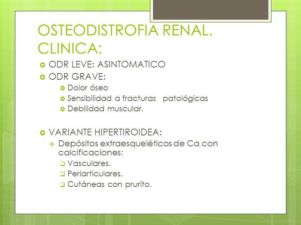 OSTEODISTROFIA RENAL. CLINICA: ODR LEVE: ASINTOMATICO ODR GRAVE: Dolor óseo Sensibilidad a fracturas patológicas Debilidad muscular. VARIANTE HIPERTIR