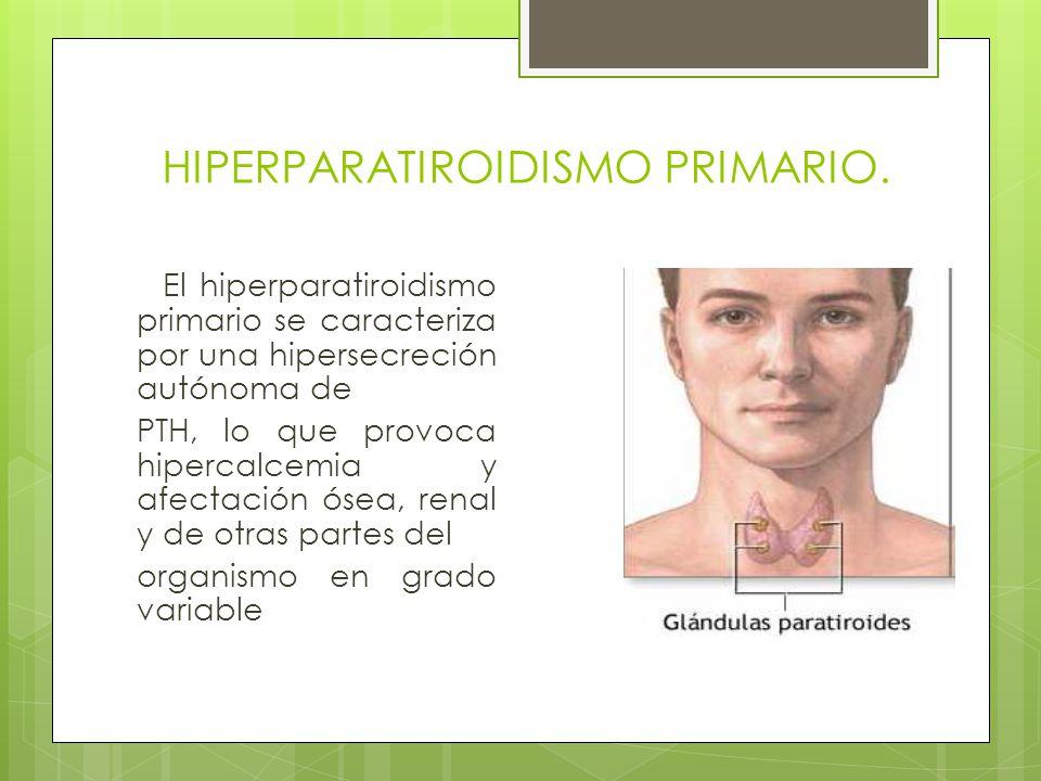 HIPERPARATIROIDISMO PRIMARIO. El hiperparatiroidismo primario se caracteriza por una hipersecreción autónoma de PTH, lo que provoca hipercalcemia y af