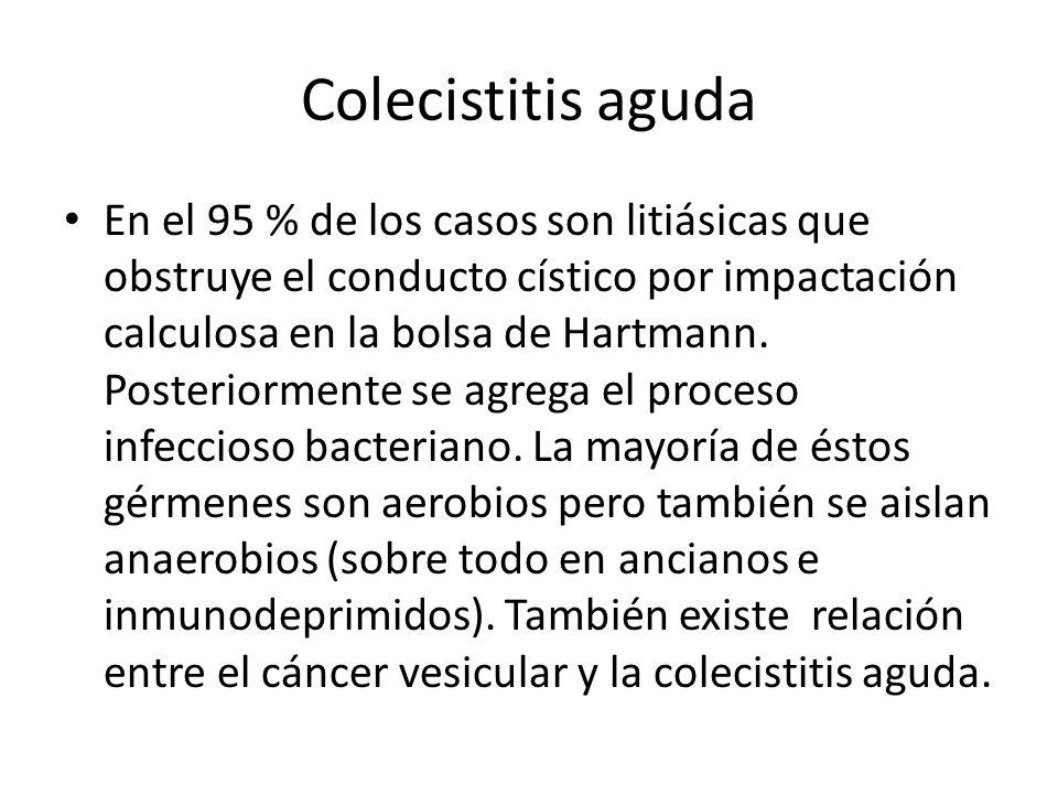 Colecistitis aguda En el 95 % de los casos son litiásicas que obstruye el conducto cístico por impactación calculosa en la bolsa de Hartmann. Posterio