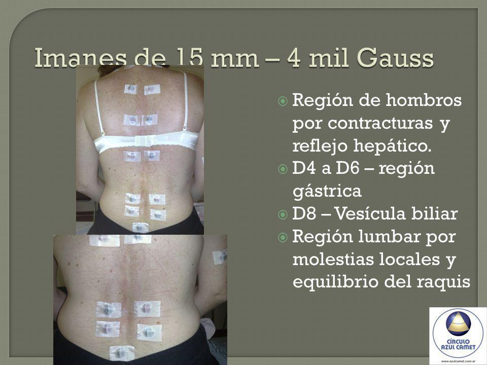 Imanes de 15 mm – 4 mil Gauss Región de hombros por contracturas y reflejo hepático. D4 a D6 – región gástrica D8 – Vesícula biliar Región lumbar por