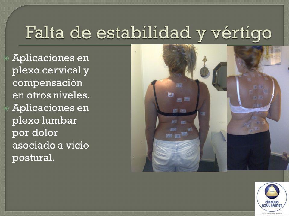 Aplicaciones en plexo cervical y compensación en otros niveles. Aplicaciones en plexo lumbar por dolor asociado a vicio postural.